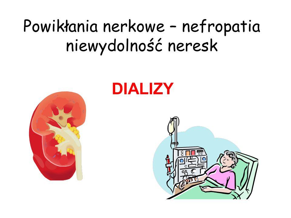 Powikłania nerkowe – nefropatia niewydolność neresk DIALIZY