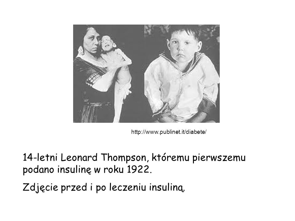 14-letni Leonard Thompson, któremu pierwszemu podano insulinę w roku 1922. Zdjęcie przed i po leczeniu insuliną. http://www.publinet.it/diabete/