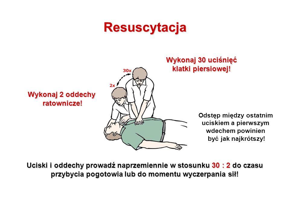 Resuscytacja Wykonaj 30 uciśnięć klatki piersiowej.