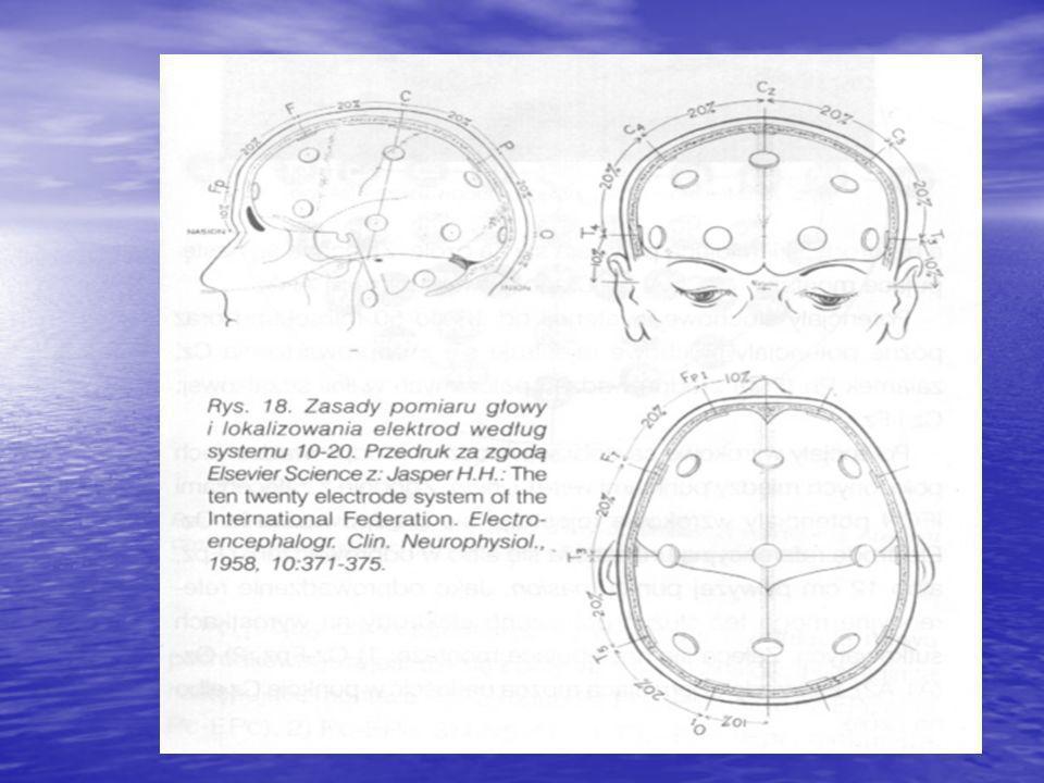 Co robi terapeuta? Umieszcza na głowie pacjenta elektrody w ściśle określone, wymierzone miejsca…. Umieszcza na głowie pacjenta elektrody w ściśle okr