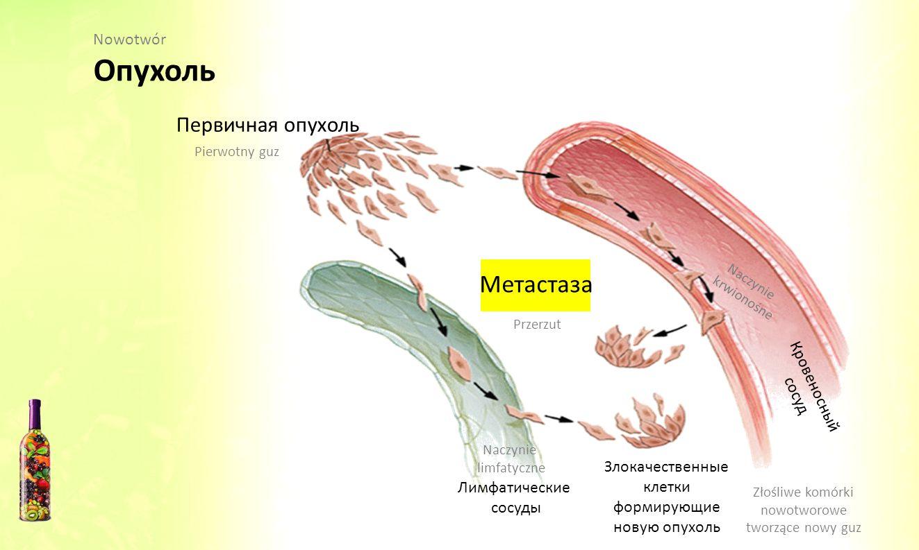 Первичная опухоль Метастаза Кровеносный сосуд Злокачественные клетки формирующие новую опухоль Лимфатические сосуды Pierwotny guz Przerzut Naczynie kr