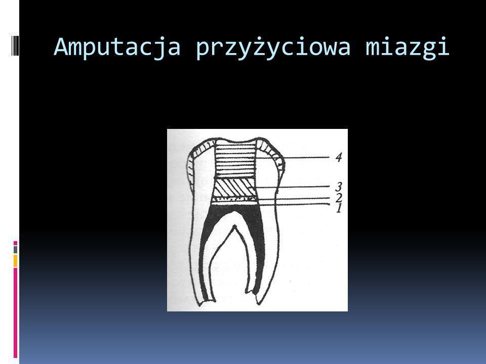 Amputacja przyżyciowa miazgi