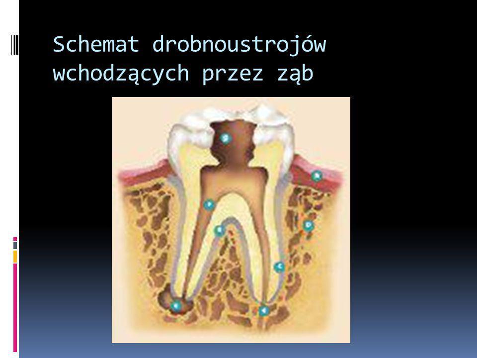 Schemat drobnoustrojów wchodzących przez ząb