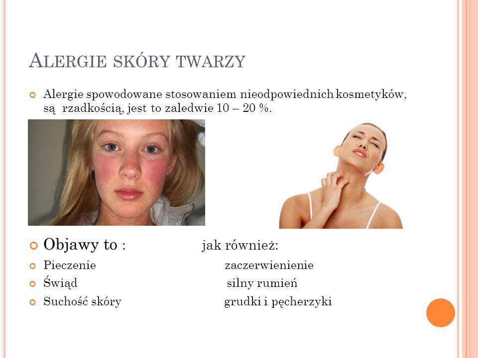 A LERGIE SKÓRY TWARZY Alergie spowodowane stosowaniem nieodpowiednich kosmetyków, są rzadkością, jest to zaledwie 10 – 20 %. Objawy to : jak również: