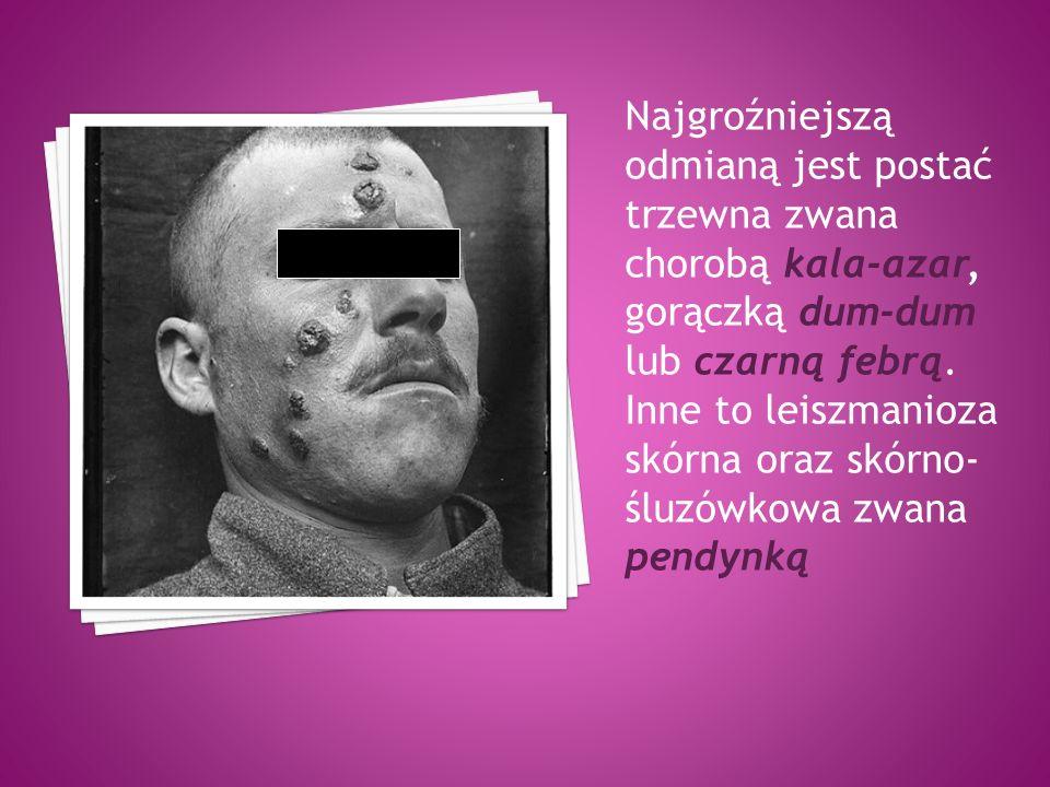 Najgroźniejszą odmianą jest postać trzewna zwana chorobą kala-azar, gorączką dum-dum lub czarną febrą.