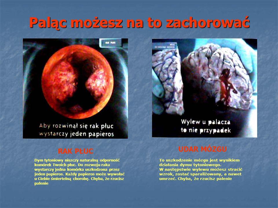 Paląc możesz na to zachorować RAK PŁUC UDAR MÓZGU To uszkodzenie mózgu jest wynikiem działania dymu tytoniowego. W następstwie wylewu możesz stracić w
