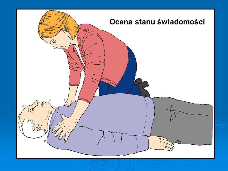 Oceń przytomność Udrożnij drogi oddechowe Bezpieczeństwo Wołaj o pomoc