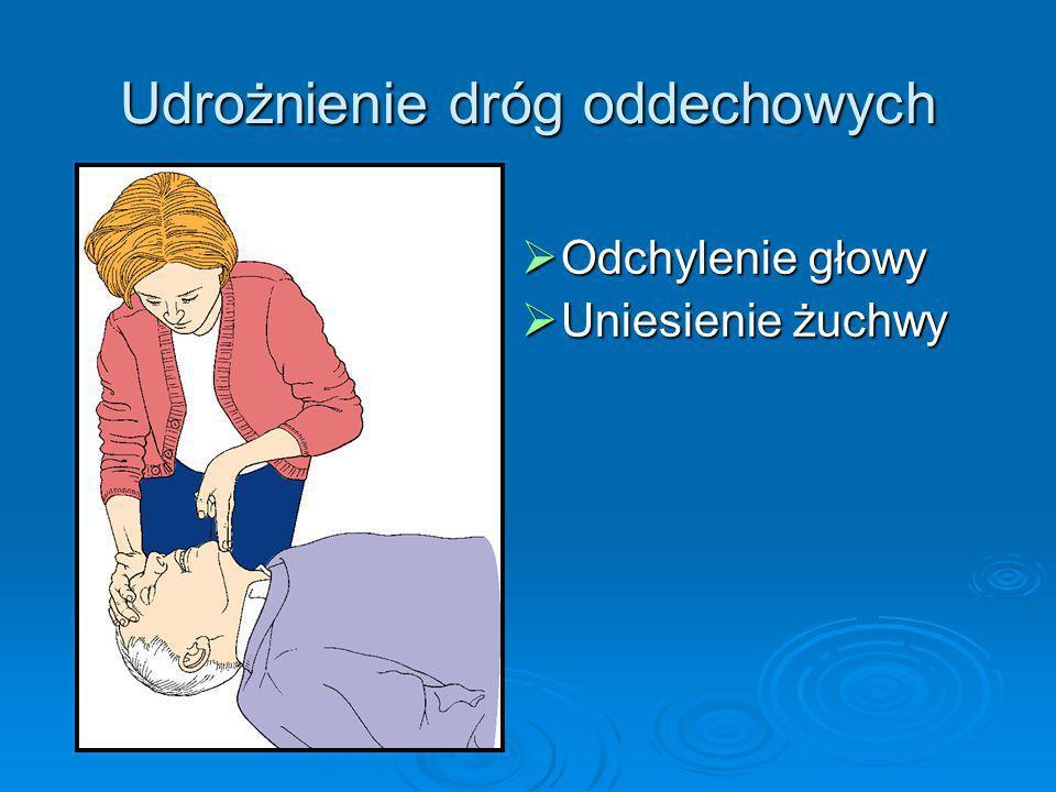 Wentylacja Zamknąć nos poszkodowanego Zamknąć nos poszkodowanego Utrzymywać drożność dróg oddechowych Utrzymywać drożność dróg oddechowych Wziąć głęboki wdech Wziąć głęboki wdech Utrzymywać szczelność między ustami ratującego i poszkodowanego Utrzymywać szczelność między ustami ratującego i poszkodowanego