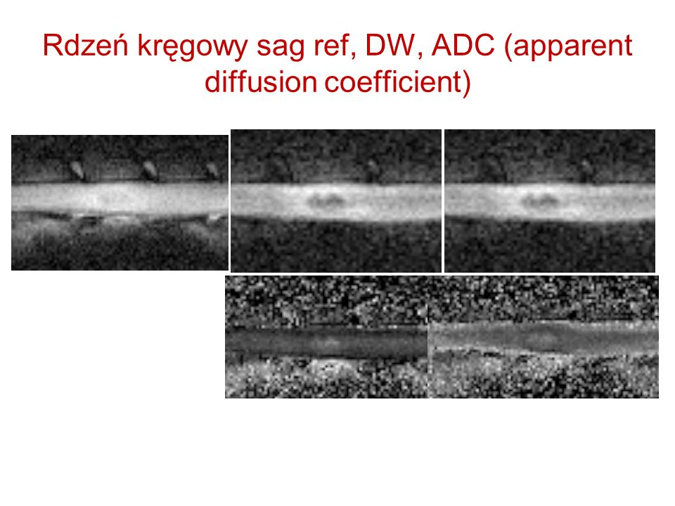 Rdzeń kręgowy sag ref, DW, ADC (apparent diffusion coefficient)