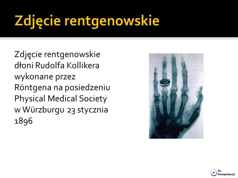 Zdjęcie rentgenowskie dłoni Rudolfa Kollikera wykonane przez Röntgena na posiedzeniu Physical Medical Society w Würzburgu 23 stycznia 1896