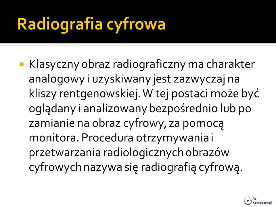 Klasyczny obraz radiograficzny ma charakter analogowy i uzyskiwany jest zazwyczaj na kliszy rentgenowskiej. W tej postaci może być oglądany i analizow
