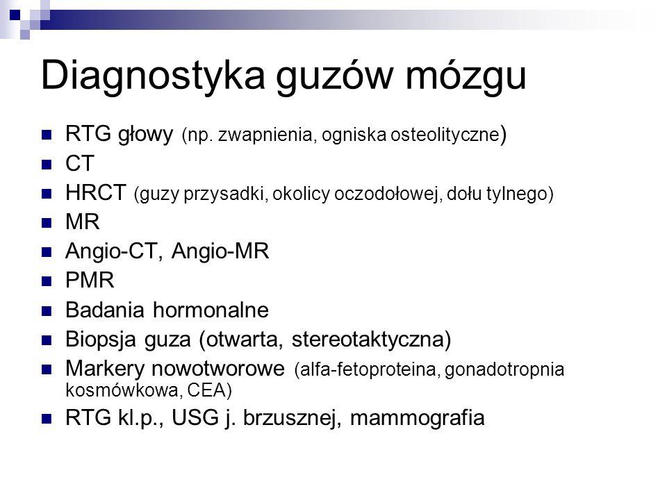Diagnostyka guzów mózgu RTG głowy (np.