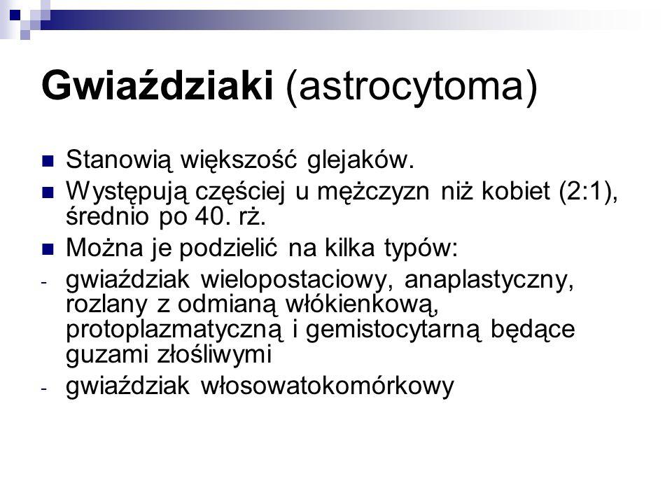 Gwiaździaki (astrocytoma) Stanowią większość glejaków.