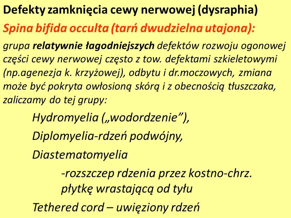 Defekty zamknięcia cewy nerwowej (dysraphia) Spina bifida occulta (tarń dwudzielna utajona): grupa relatywnie łagodniejszych defektów rozwoju ogonowej