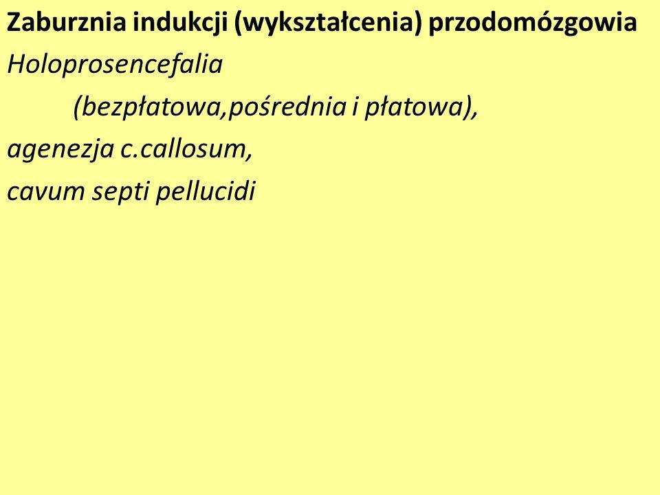 Zaburznia indukcji (wykształcenia) przodomózgowia Holoprosencefalia (bezpłatowa,pośrednia i płatowa), agenezja c.callosum, cavum septi pellucidi