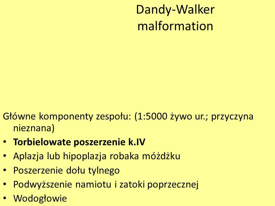 Dandy-Walker malformation Główne komponenty zespołu: (1:5000 żywo ur.; przyczyna nieznana) Torbielowate poszerzenie k.IV Aplazja lub hipoplazja robaka