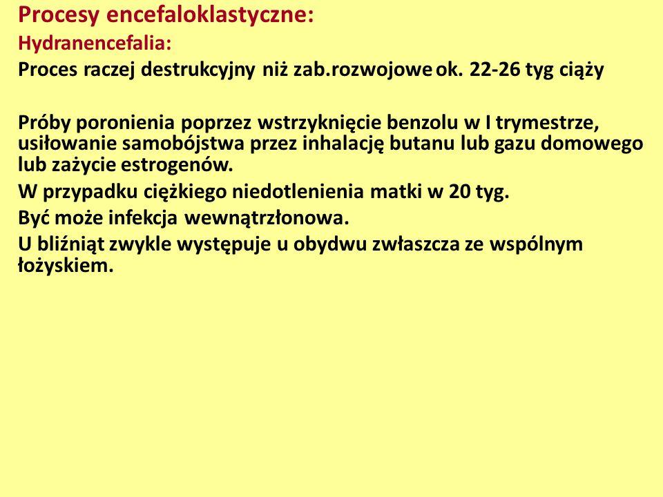 Procesy encefaloklastyczne: Hydranencefalia: Proces raczej destrukcyjny niż zab.rozwojowe ok. 22-26 tyg ciąży Próby poronienia poprzez wstrzyknięcie b