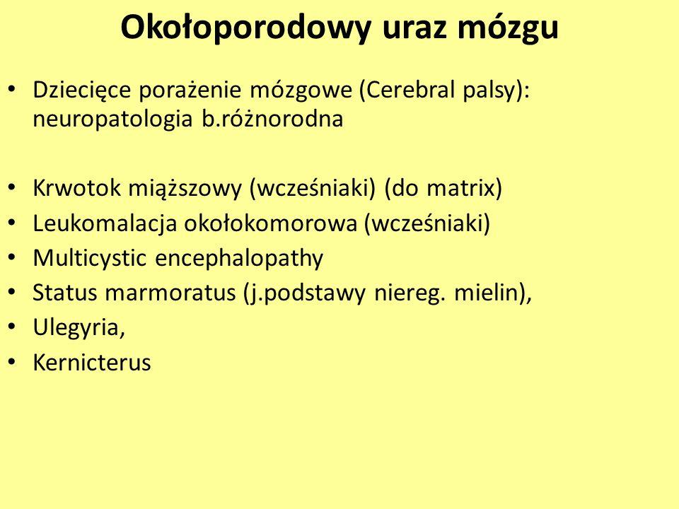 Okołoporodowy uraz mózgu Dziecięce porażenie mózgowe (Cerebral palsy): neuropatologia b.różnorodna Krwotok miąższowy (wcześniaki) (do matrix) Leukomal