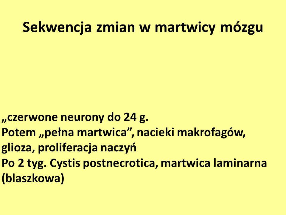 Sekwencja zmian w martwicy mózgu czerwone neurony do 24 g. Potem pełna martwica, nacieki makrofagów, glioza, proliferacja naczyń Po 2 tyg. Cystis post