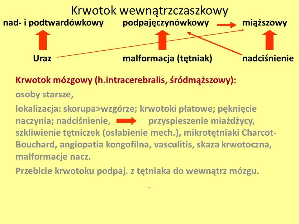 Krwotok wewnątrzczaszkowy Krwotok mózgowy (h.intracerebralis, śródmąższowy): osoby starsze, lokalizacja: skorupa>wzgórze; krwotoki płatowe; pęknięcie