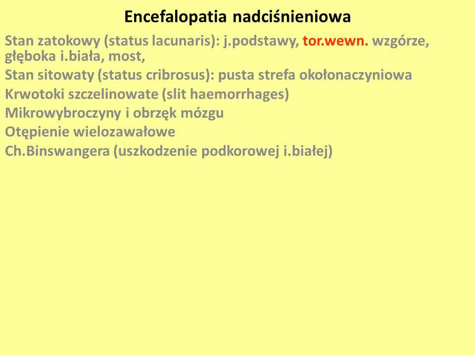 Encefalopatia nadciśnieniowa Stan zatokowy (status lacunaris): j.podstawy, tor.wewn. wzgórze, głęboka i.biała, most, Stan sitowaty (status cribrosus):