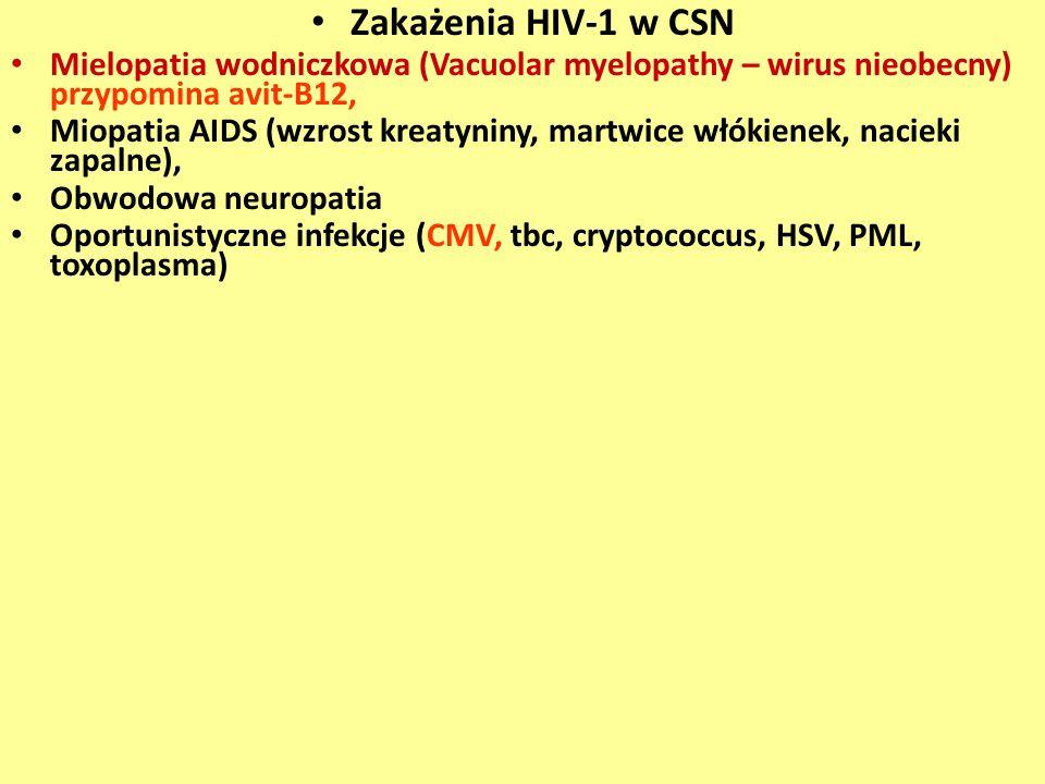 Zakażenia HIV-1 w CSN Mielopatia wodniczkowa (Vacuolar myelopathy – wirus nieobecny) przypomina avit-B12, Miopatia AIDS (wzrost kreatyniny, martwice w