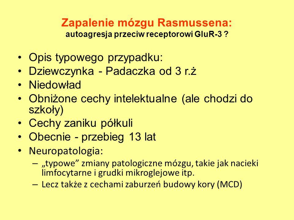 Zapalenie mózgu Rasmussena: autoagresja przeciw receptorowi GluR-3 ? Opis typowego przypadku: Dziewczynka - Padaczka od 3 r.ż Niedowład Obniżone cechy
