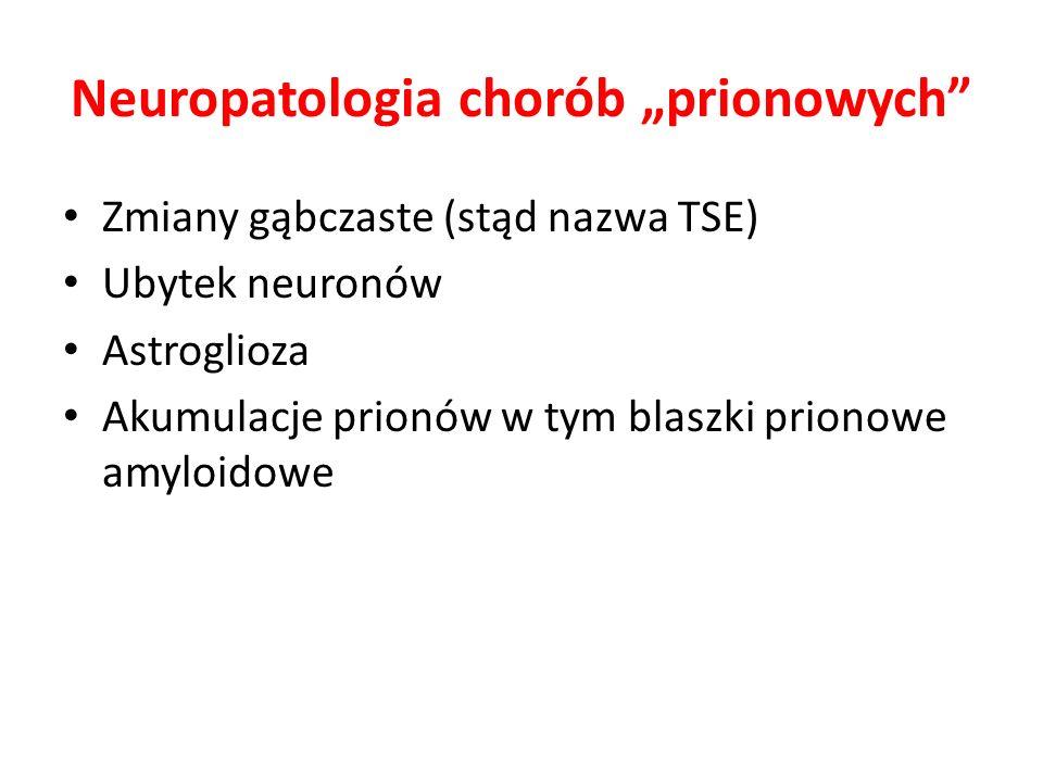 Neuropatologia chorób prionowych Zmiany gąbczaste (stąd nazwa TSE) Ubytek neuronów Astroglioza Akumulacje prionów w tym blaszki prionowe amyloidowe