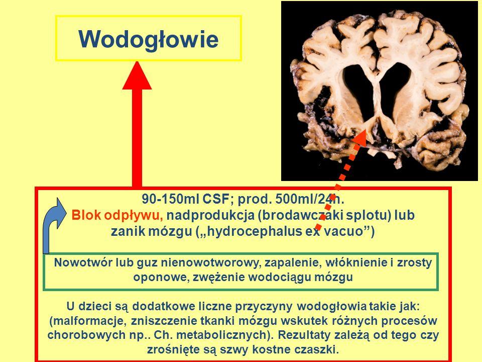 90-150ml CSF; prod. 500ml/24h. Blok odpływu, nadprodukcja (brodawczaki splotu) lub zanik mózgu (hydrocephalus ex vacuo) Nowotwór lub guz nienowotworow