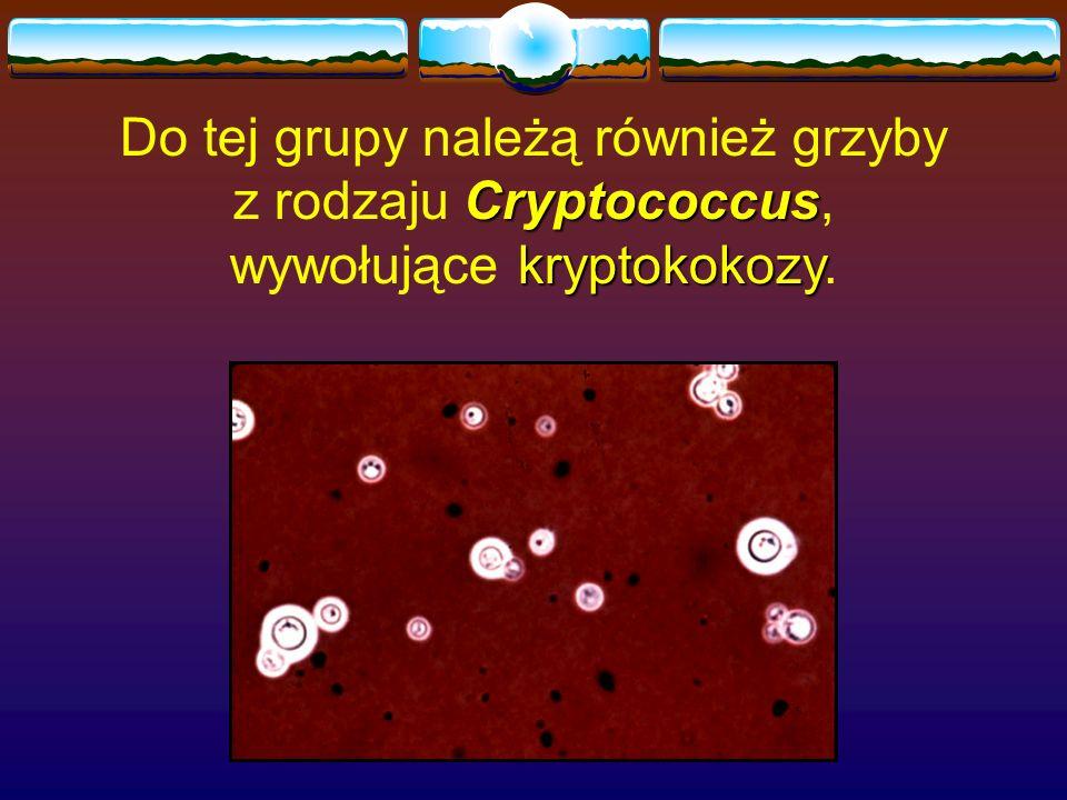 Cryptococcus kryptokokozy Do tej grupy należą również grzyby z rodzaju Cryptococcus, wywołujące kryptokokozy.