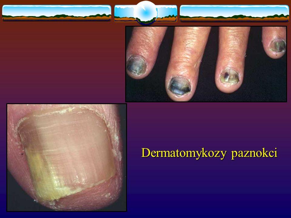 Dermatomykozy paznokci