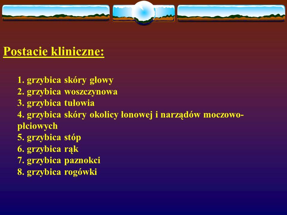 Postacie kliniczne: 1. grzybica skóry głowy 2. grzybica woszczynowa 3. grzybica tułowia 4. grzybica skóry okolicy łonowej i narządów moczowo- płciowyc