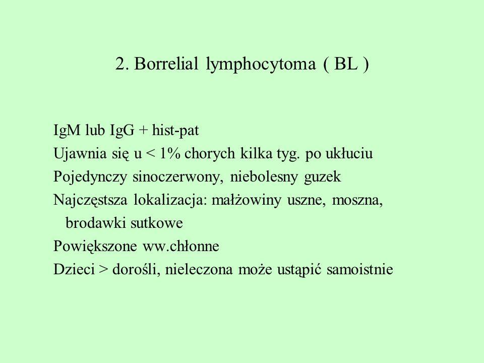 2. Borrelial lymphocytoma ( BL ) IgM lub IgG + hist-pat Ujawnia się u < 1% chorych kilka tyg. po ukłuciu Pojedynczy sinoczerwony, niebolesny guzek Naj