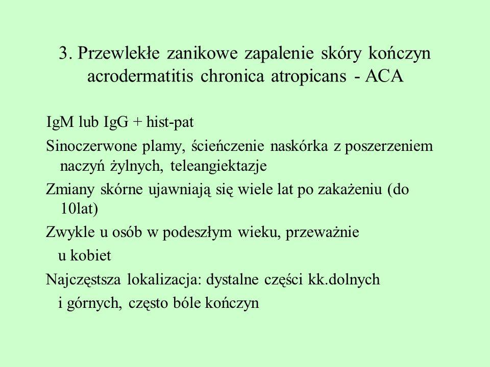 3. Przewlekłe zanikowe zapalenie skóry kończyn acrodermatitis chronica atropicans - ACA IgM lub IgG + hist-pat Sinoczerwone plamy, ścieńczenie naskórk