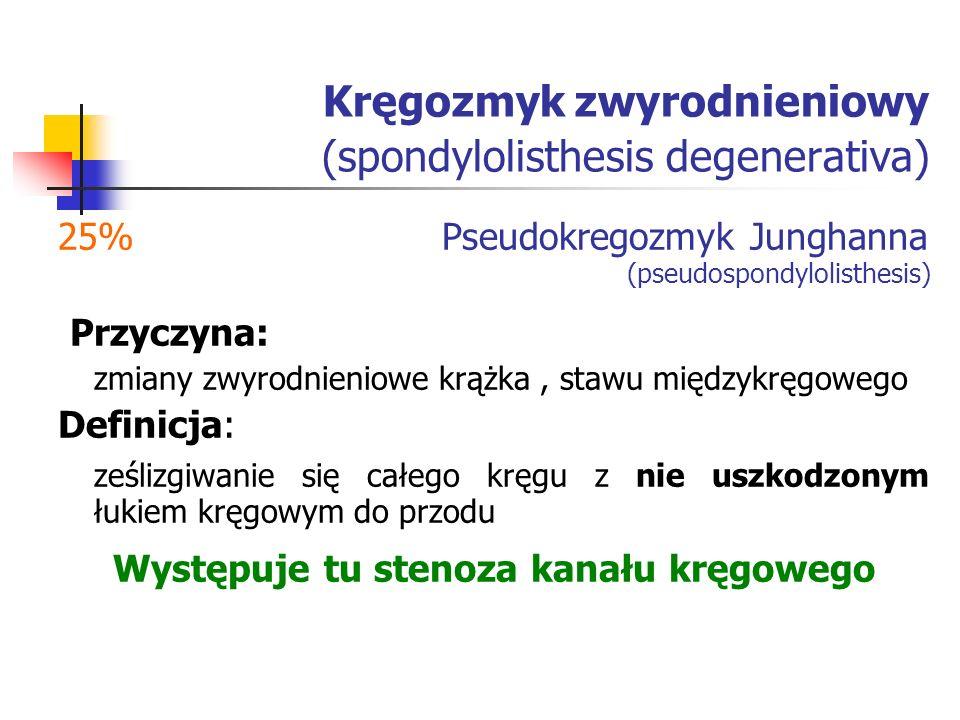 Kręgozmyk zwyrodnieniowy (spondylolisthesis degenerativa) 25% Pseudokregozmyk Junghanna (pseudospondylolisthesis) Przyczyna: zmiany zwyrodnieniowe krą