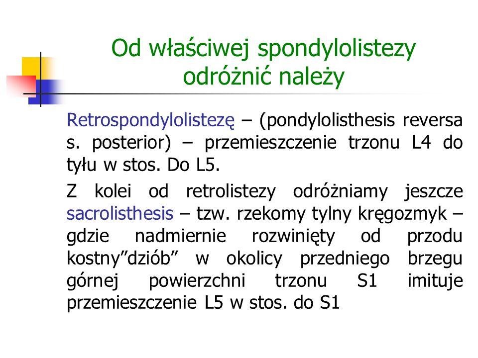 Od właściwej spondylolistezy odróżnić należy Retrospondylolistezę – (pondylolisthesis reversa s. posterior) – przemieszczenie trzonu L4 do tyłu w stos