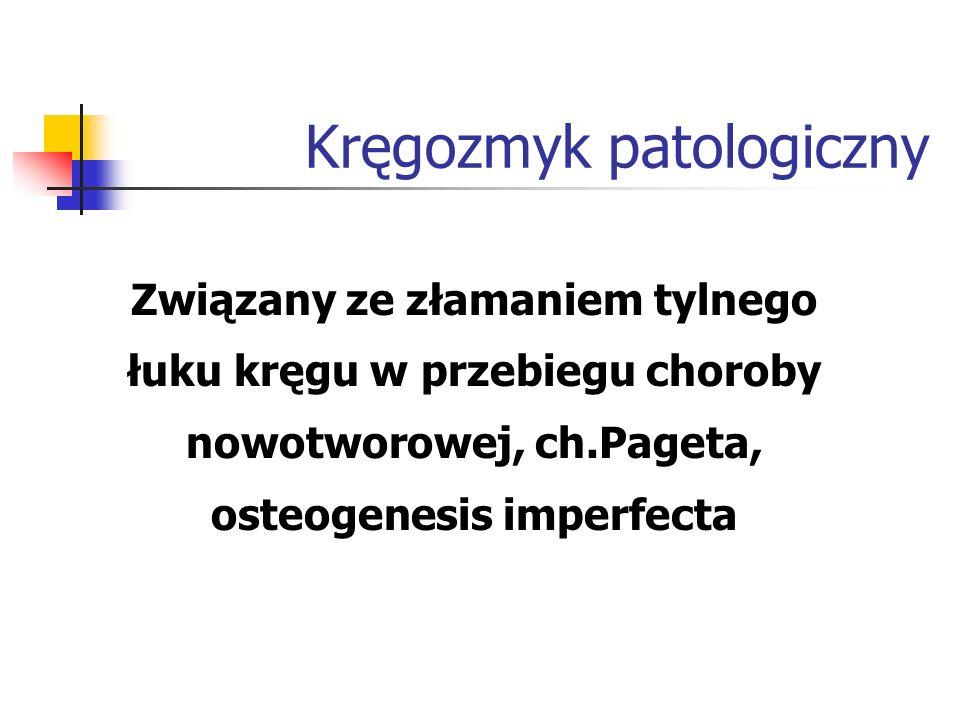 Kręgozmyk patologiczny Związany ze złamaniem tylnego łuku kręgu w przebiegu choroby nowotworowej, ch.Pageta, osteogenesis imperfecta