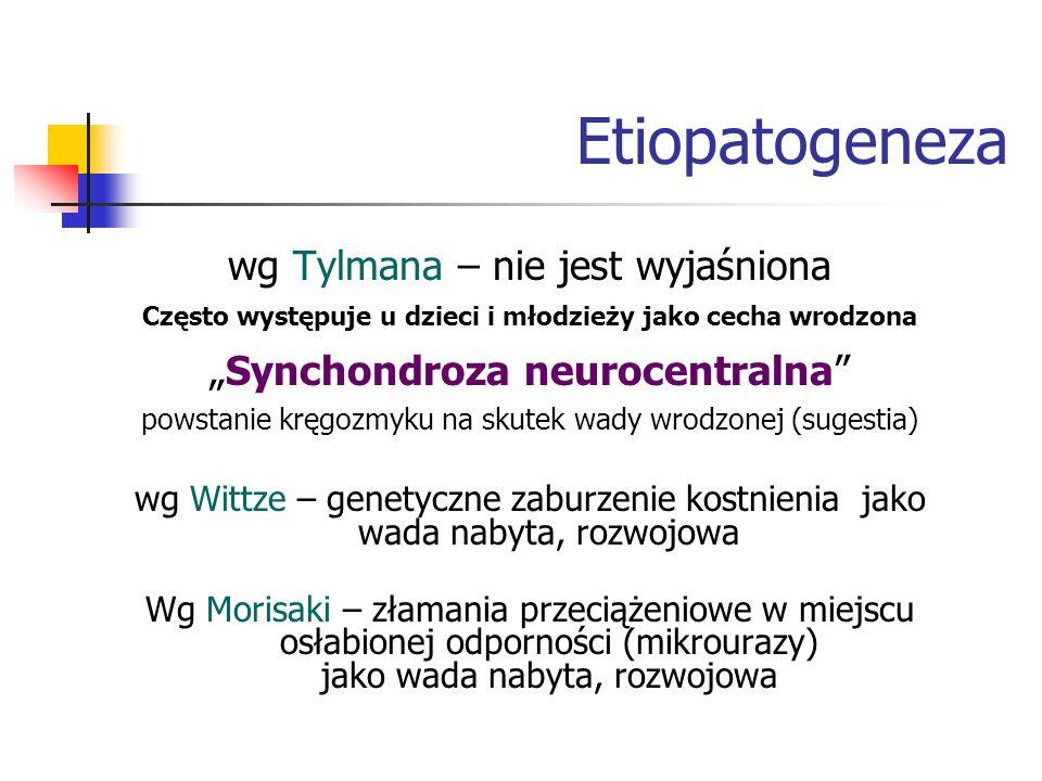 Etiopatogeneza wg Tylmana – nie jest wyjaśniona Często występuje u dzieci i młodzieży jako cecha wrodzona Synchondroza neurocentralna powstanie kręgoz