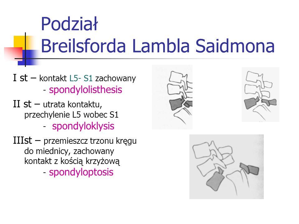 Podział Breilsforda Lambla Saidmona I st – kontakt L5- S1 zachowany - spondylolisthesis II st – utrata kontaktu, przechylenie L5 wobec S1 - spondylokl
