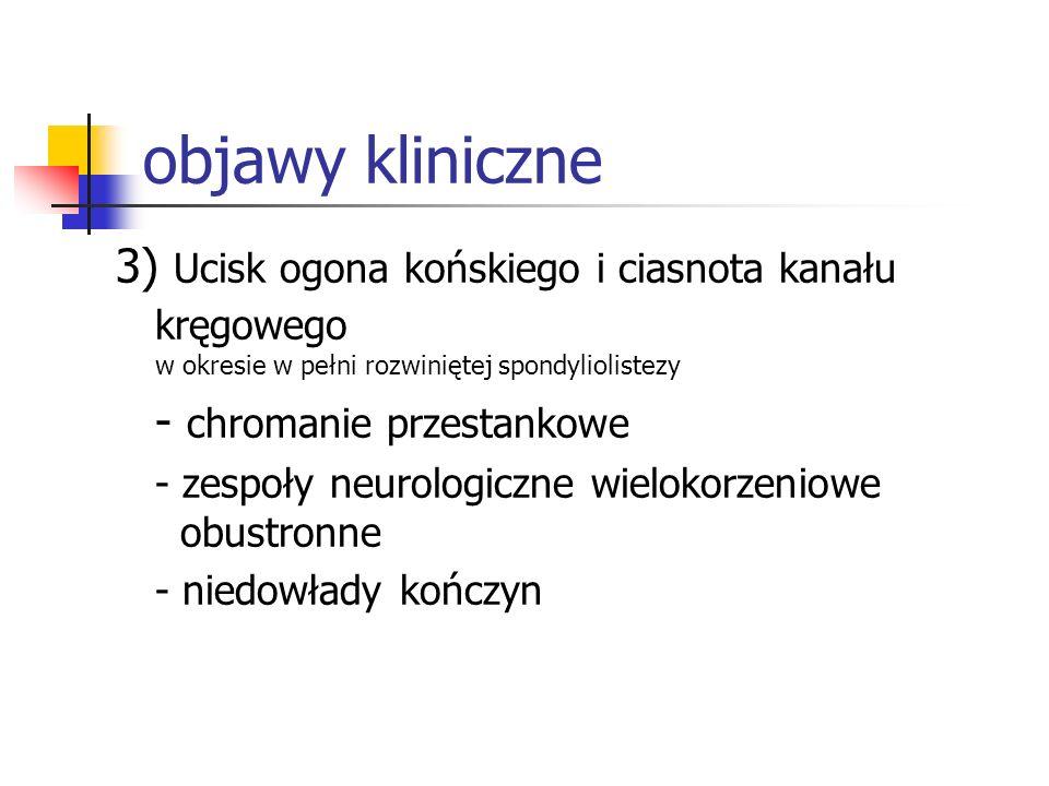 objawy kliniczne 3) Ucisk ogona końskiego i ciasnota kanału kręgowego w okresie w pełni rozwiniętej spondyliolistezy - chromanie przestankowe - zespoł