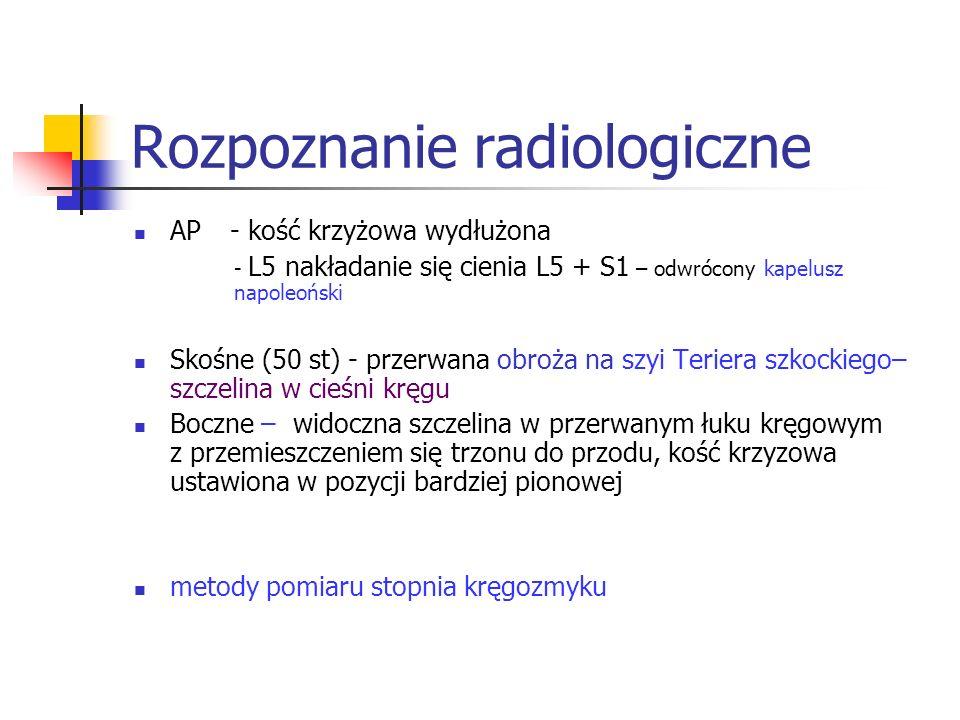 Rozpoznanie radiologiczne AP - kość krzyżowa wydłużona - L5 nakładanie się cienia L5 + S1 – odwrócony kapelusz napoleoński Skośne (50 st) - przerwana