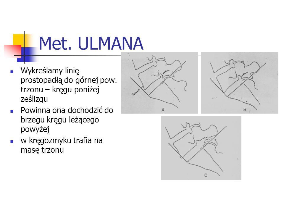 Met. ULMANA Wykreślamy linię prostopadłą do górnej pow. trzonu – kręgu poniżej ześlizgu Powinna ona dochodzić do brzegu kręgu leżącego powyżej w kręgo