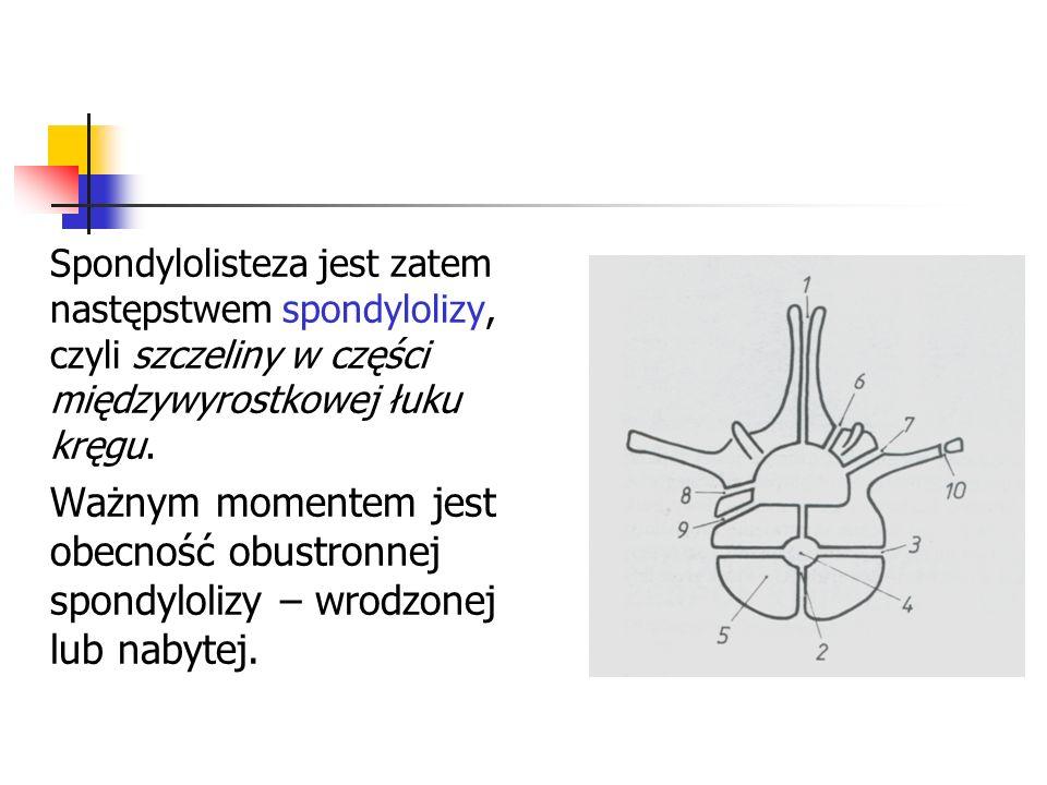 Spondylolisteza jest zatem następstwem spondylolizy, czyli szczeliny w części międzywyrostkowej łuku kręgu. Ważnym momentem jest obecność obustronnej