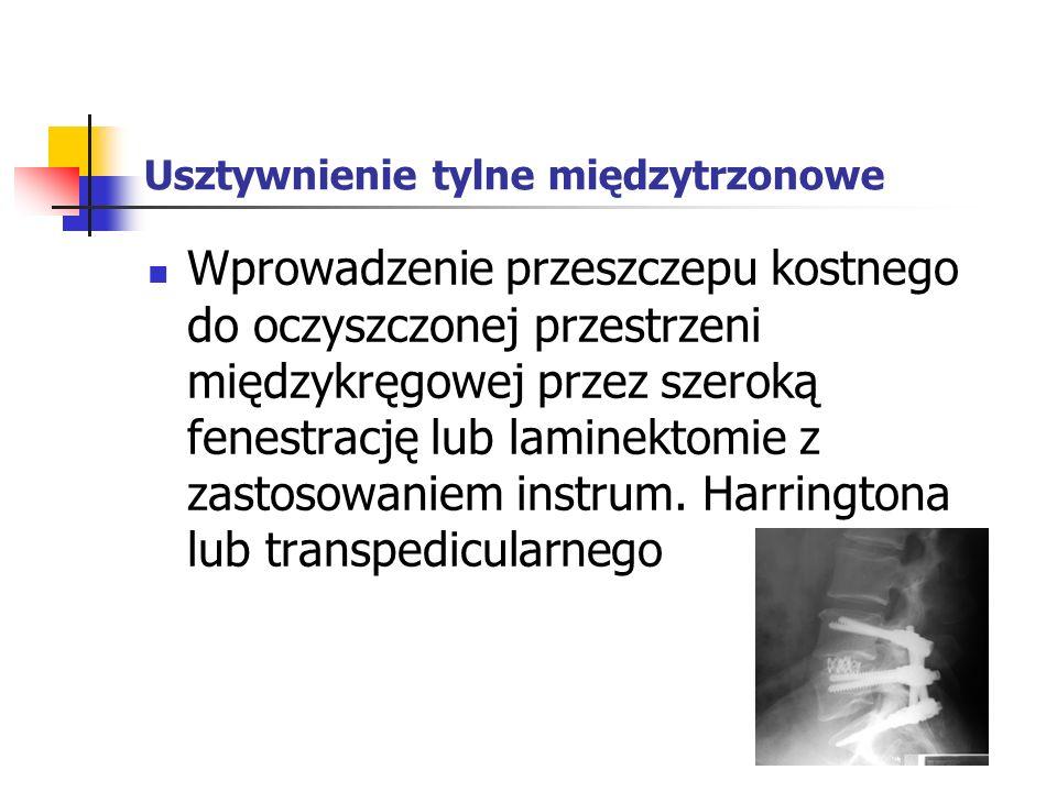 Usztywnienie tylne międzytrzonowe Wprowadzenie przeszczepu kostnego do oczyszczonej przestrzeni międzykręgowej przez szeroką fenestrację lub laminekto