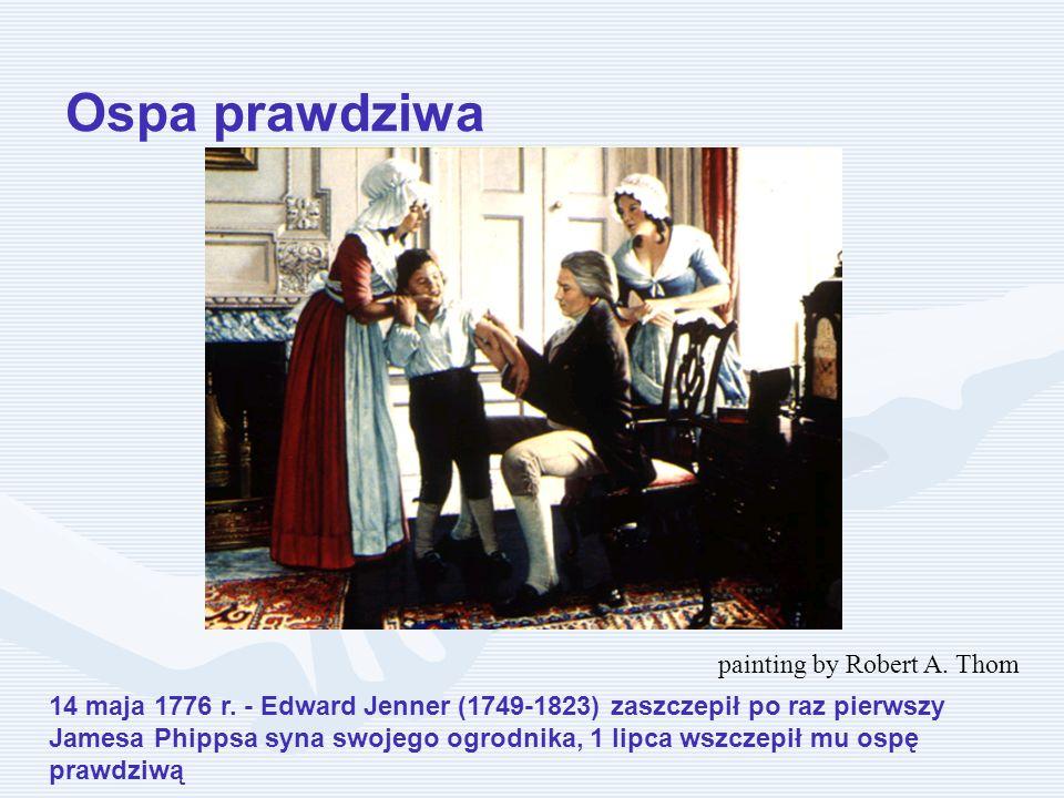14 maja 1776 r. - Edward Jenner (1749-1823) zaszczepił po raz pierwszy Jamesa Phippsa syna swojego ogrodnika, 1 lipca wszczepił mu ospę prawdziwą pain