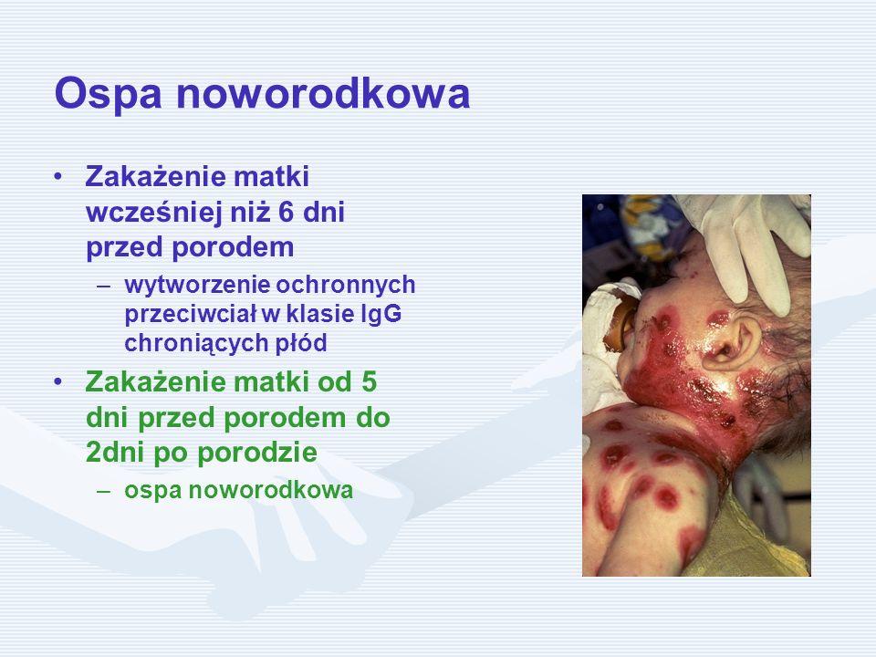 Ospa noworodkowa Zakażenie matki wcześniej niż 6 dni przed porodem – –wytworzenie ochronnych przeciwciał w klasie IgG chroniących płód Zakażenie matki