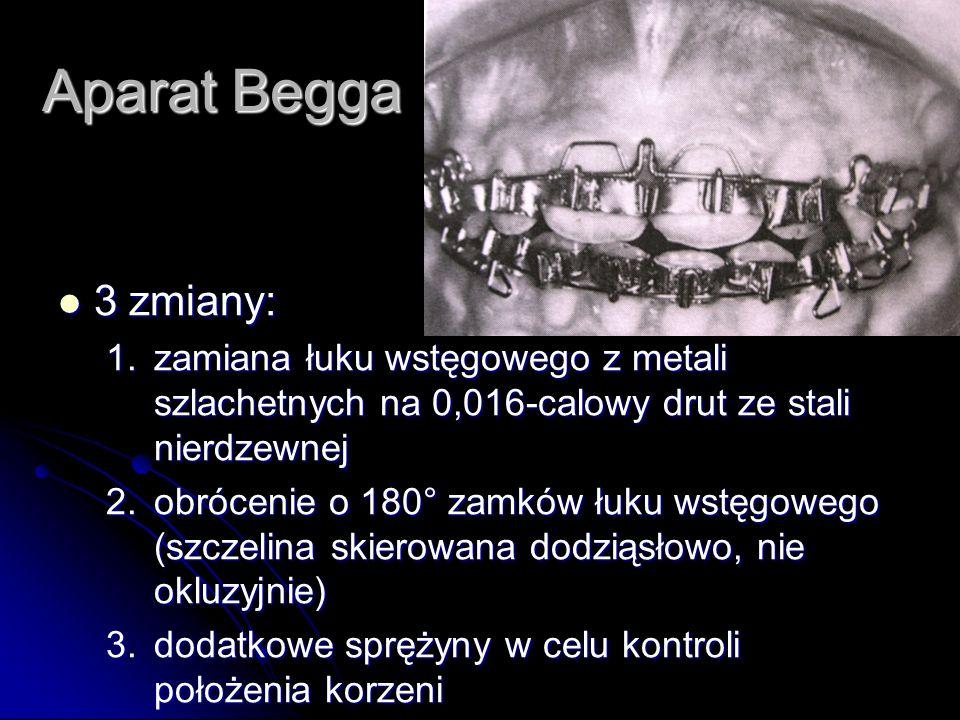 Aparat Begga 3 zmiany: 3 zmiany: 1.zamiana łuku wstęgowego z metali szlachetnych na 0,016-calowy drut ze stali nierdzewnej 2.obrócenie o 180° zamków ł