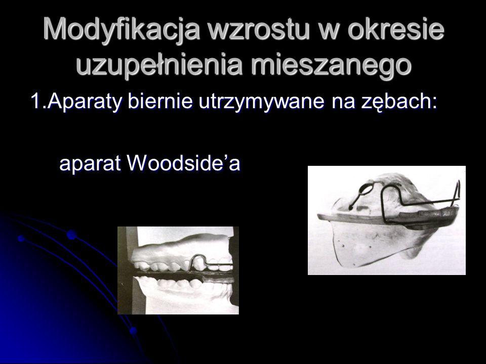 Modyfikacja wzrostu w okresie uzupełnienia mieszanego 1.Aparaty biernie utrzymywane na zębach: aparat Woodsidea aparat Woodsidea