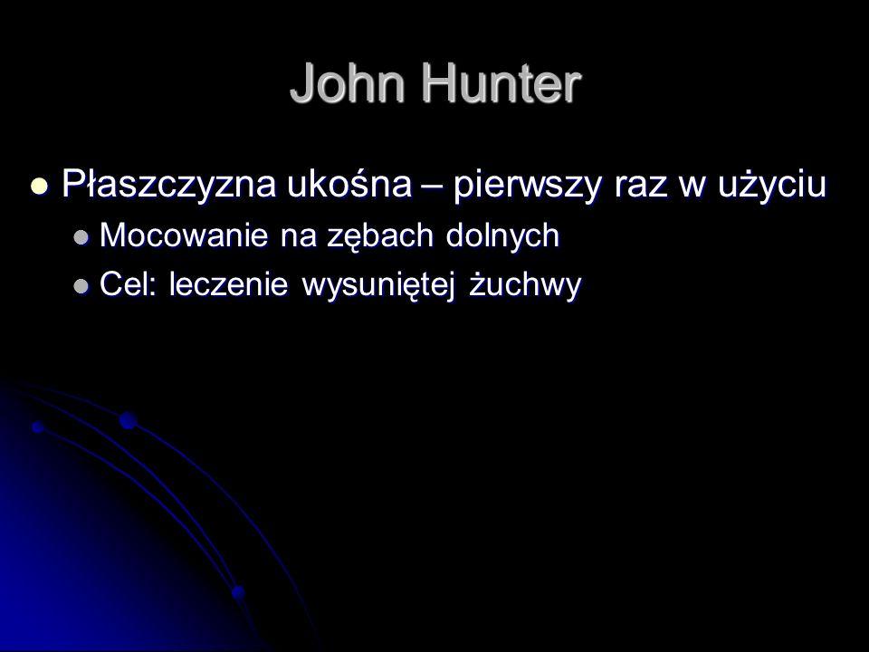 John Hunter Płaszczyzna ukośna – pierwszy raz w użyciu Płaszczyzna ukośna – pierwszy raz w użyciu Mocowanie na zębach dolnych Mocowanie na zębach doln