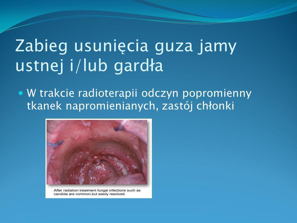 Zabieg usunięcia guza jamy nosowej, zatok Cięcie zewnętrzne- rhinotomia boczna uzpełniona o cięcia w linii środkowej wargi górnej oraz w okolicy podoczodołowej,